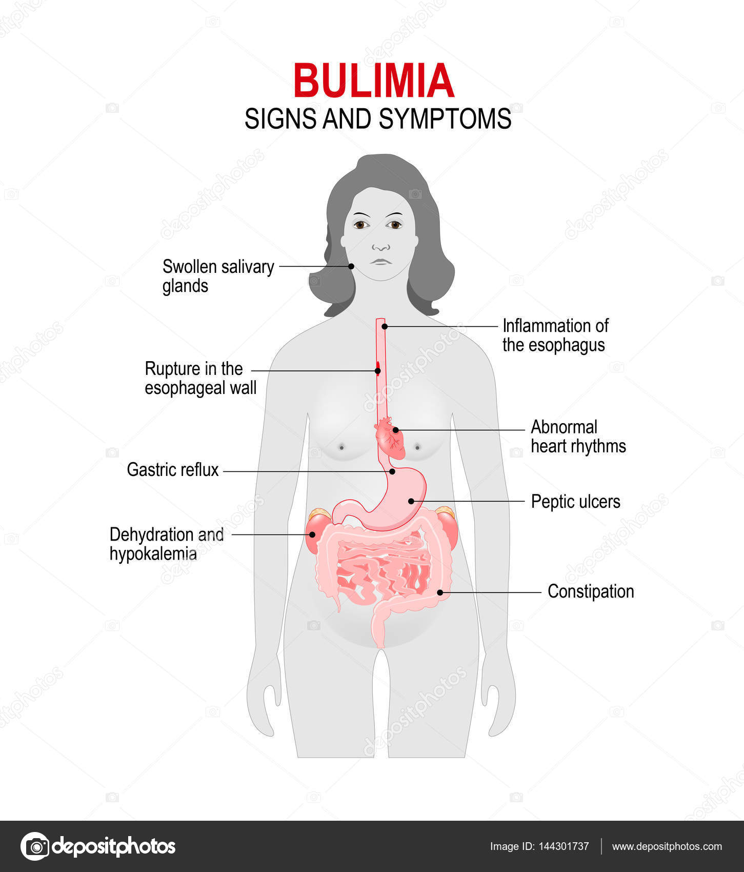 Swollen salivary glands bulimia