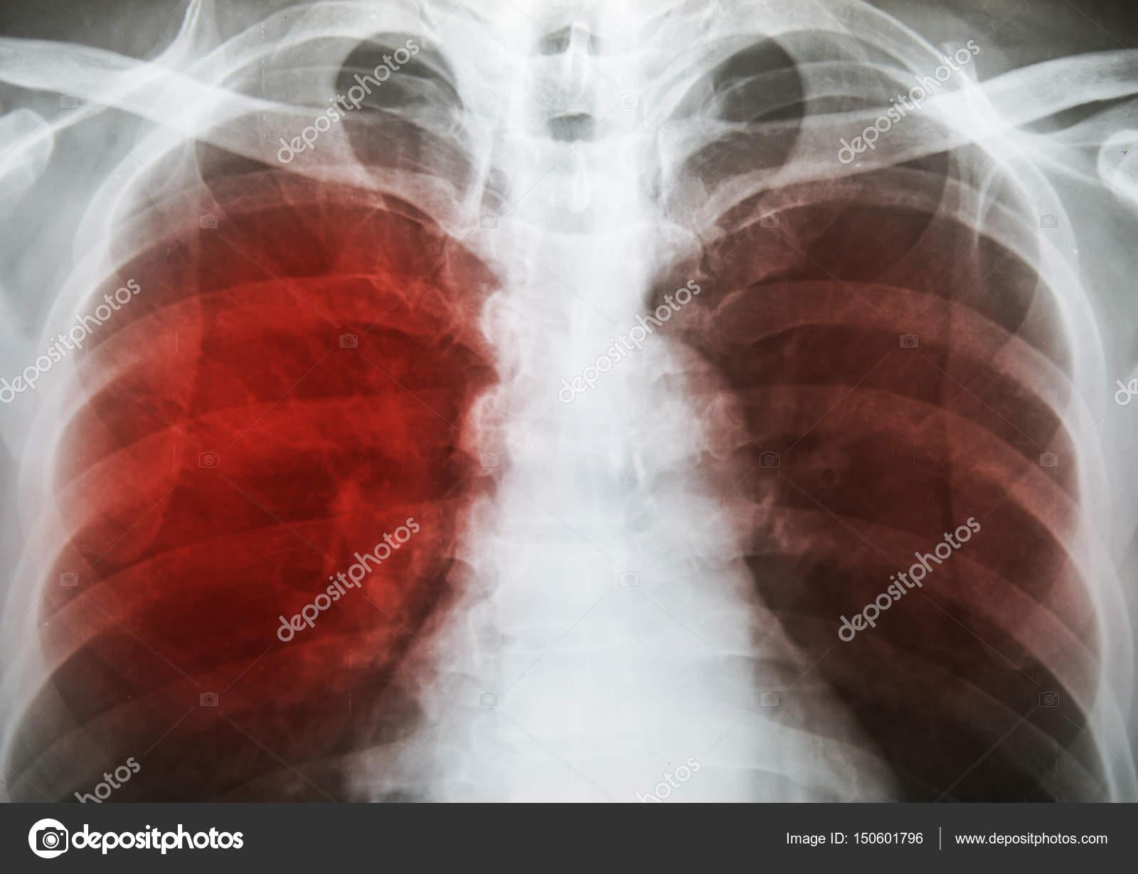 Туберкулёз лёгких симптомы у детей 12 лет фото