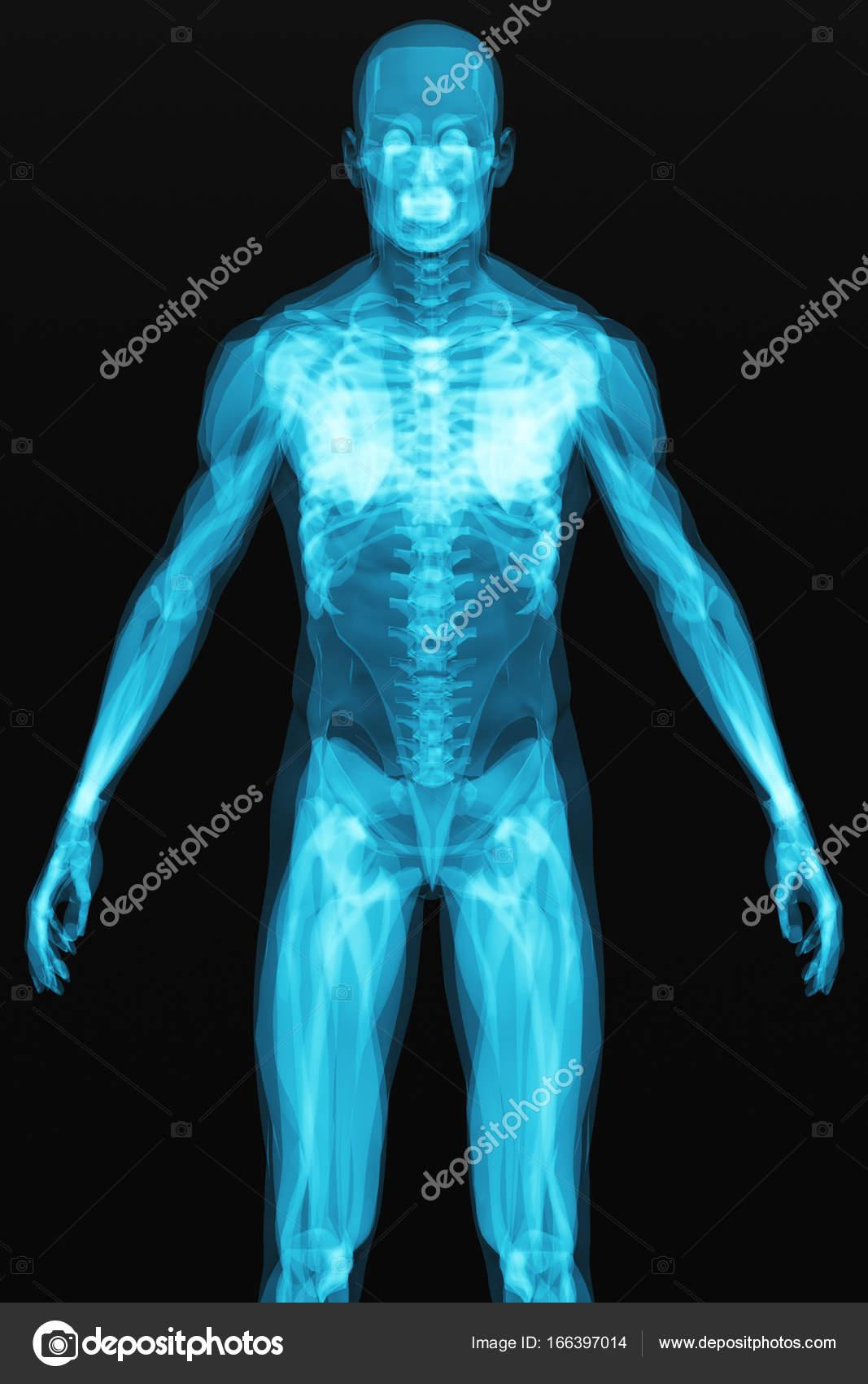 Röntgen-Scan des menschlichen Körpers — Stockfoto © scanrail #166397014