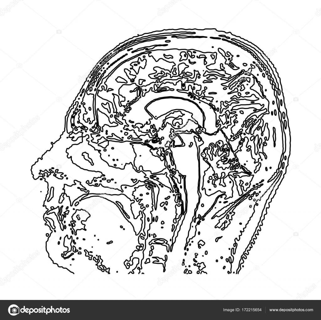 Topographic Map Mri Of The Human Brain Stock Vector C Mpavlov