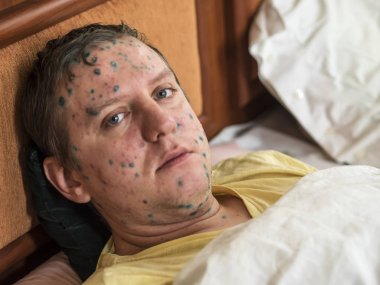 Man with chickenpox