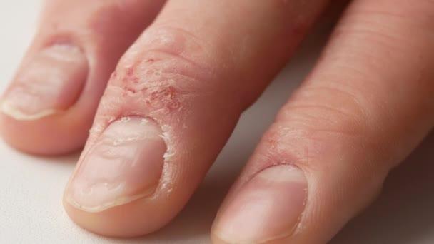 psoriasis på händerna