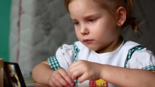 piccola ragazza varicella guardando i cartoni animati