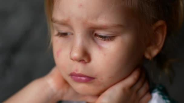 little girl chicken pox watching cartoons