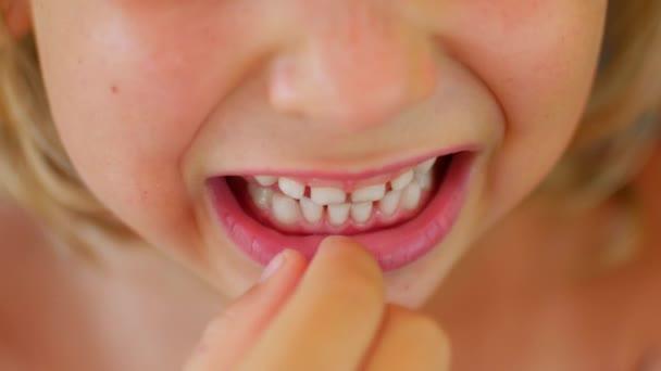 Das Kind zeigt seinen ersten taumelnden Zahn. Finger lockert Babys Zahn.