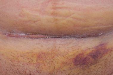 Cesarean scar studio shot