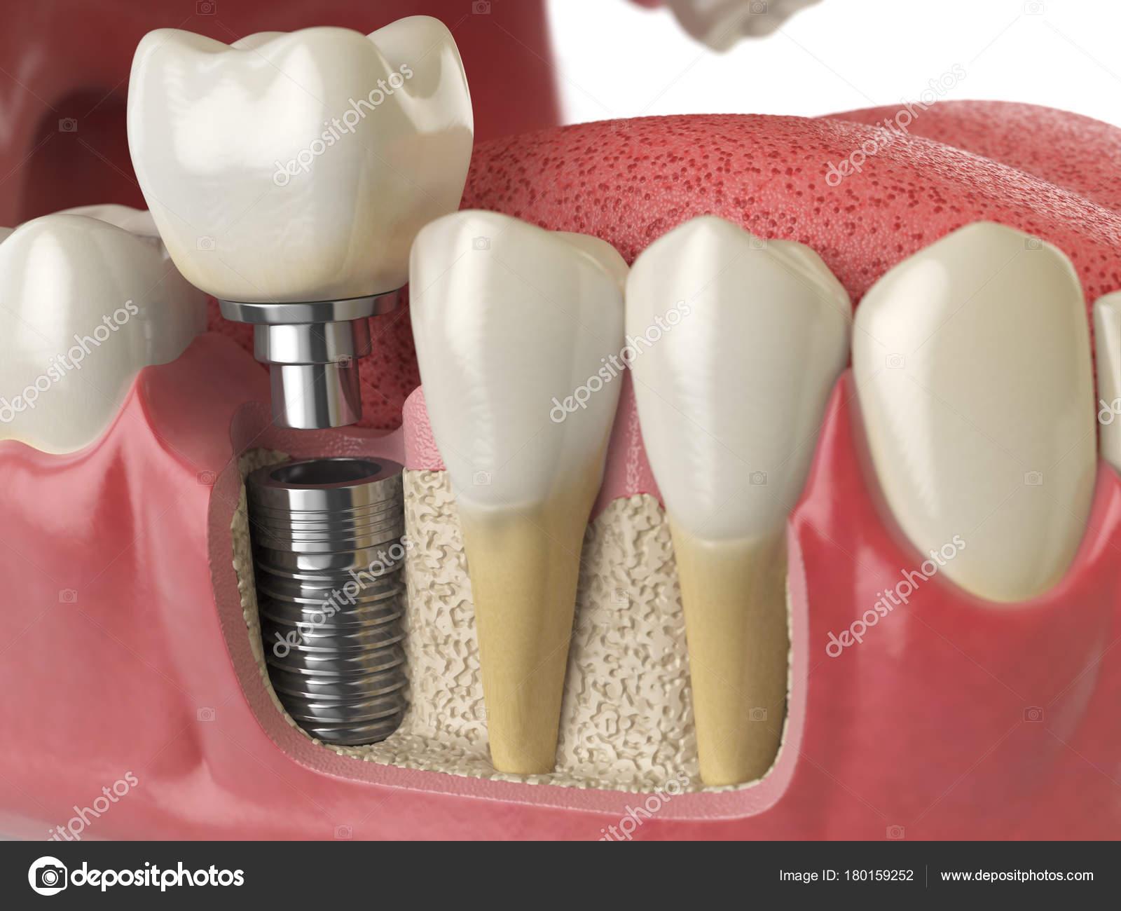 Anatomía de los dientes sanos y dientes implantes dentales en humano ...