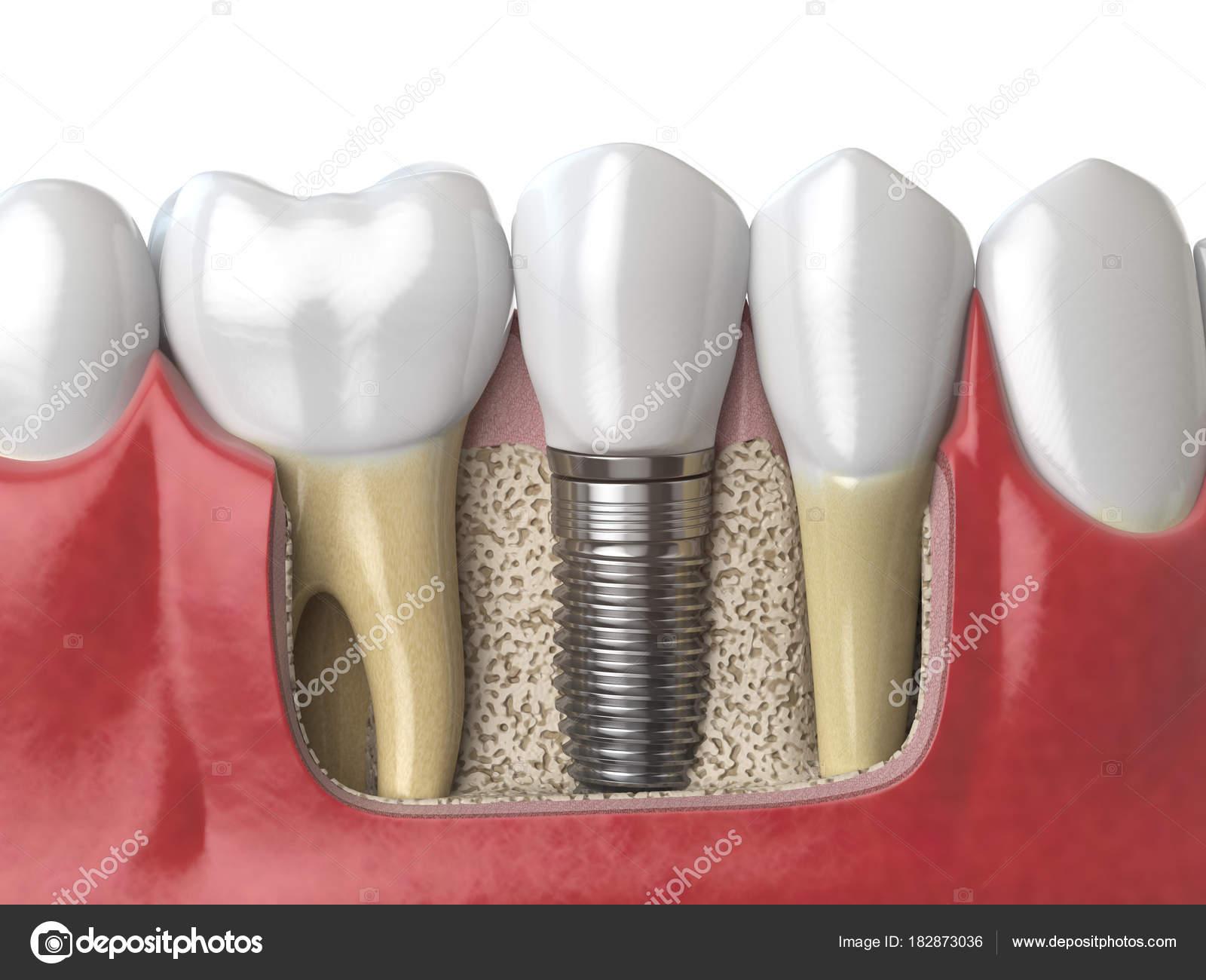 Anatomy of healthy teeth and tooth dental implant in human dentu ...