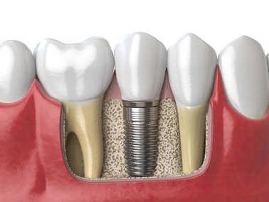 Anatomy of healthy teeth and tooth dental implant in human dentu