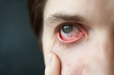 Mens red eye close-up, fatigue, problems with blood vessels