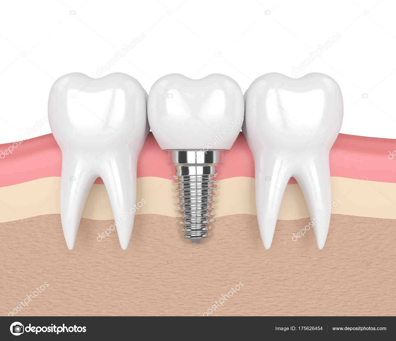 3D Rendering der Zähne mit Zahnimplantaten im Zahnfleisch ...
