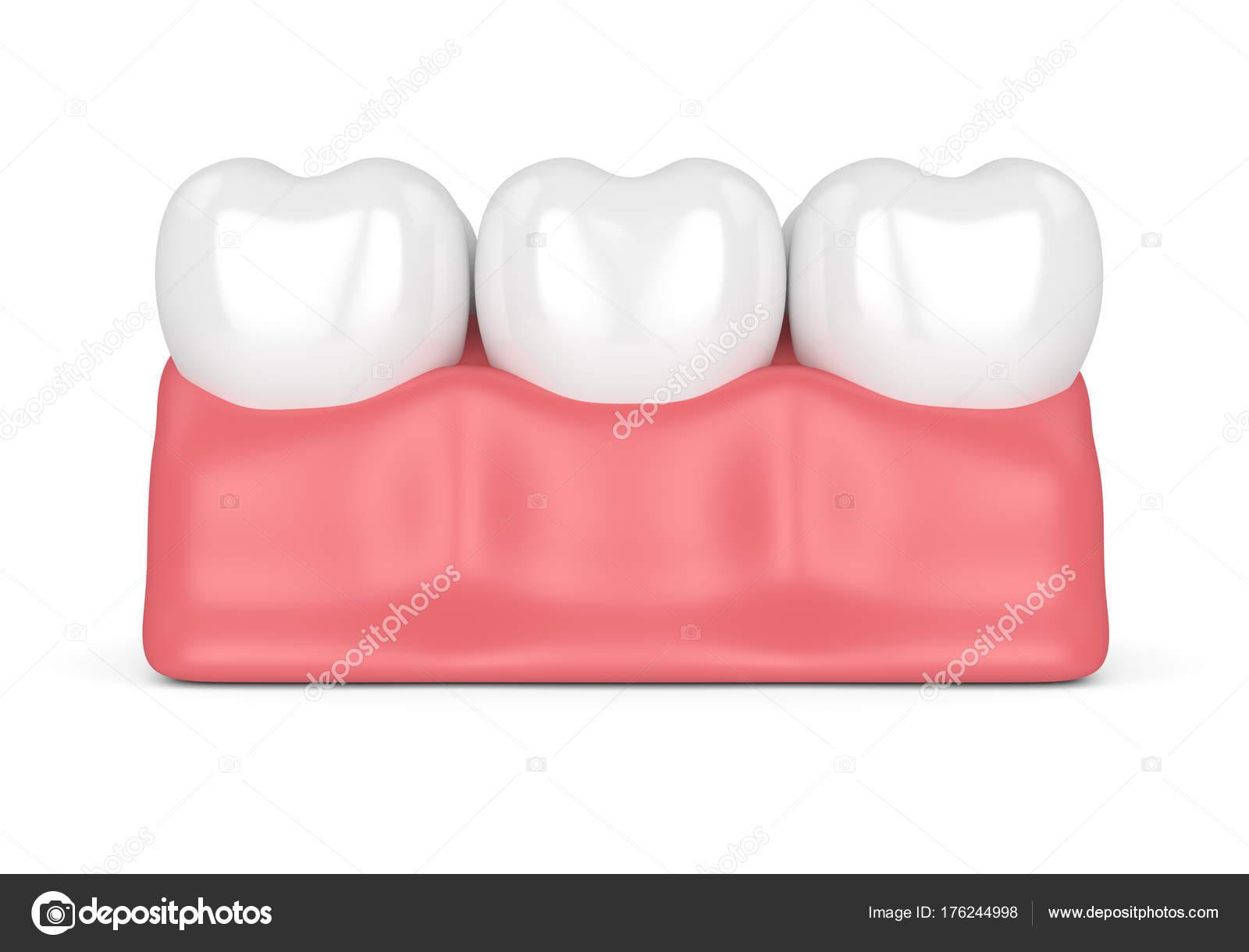 3D Rendering der Zähne im Zahnfleisch — Stockfoto © ayo888 #176244998
