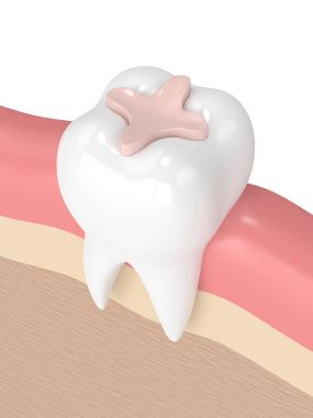 3d render of tooth with dental inlay filling