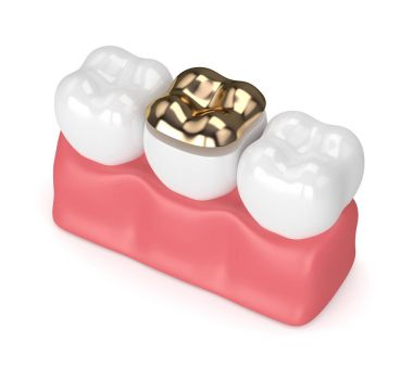 3d render of teeth with dental golden onlay filling