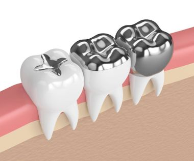 3d render of teeth with different types of dental amalgam fillin