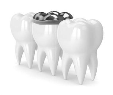 3d render of teeth with dental onlay amalgam filling
