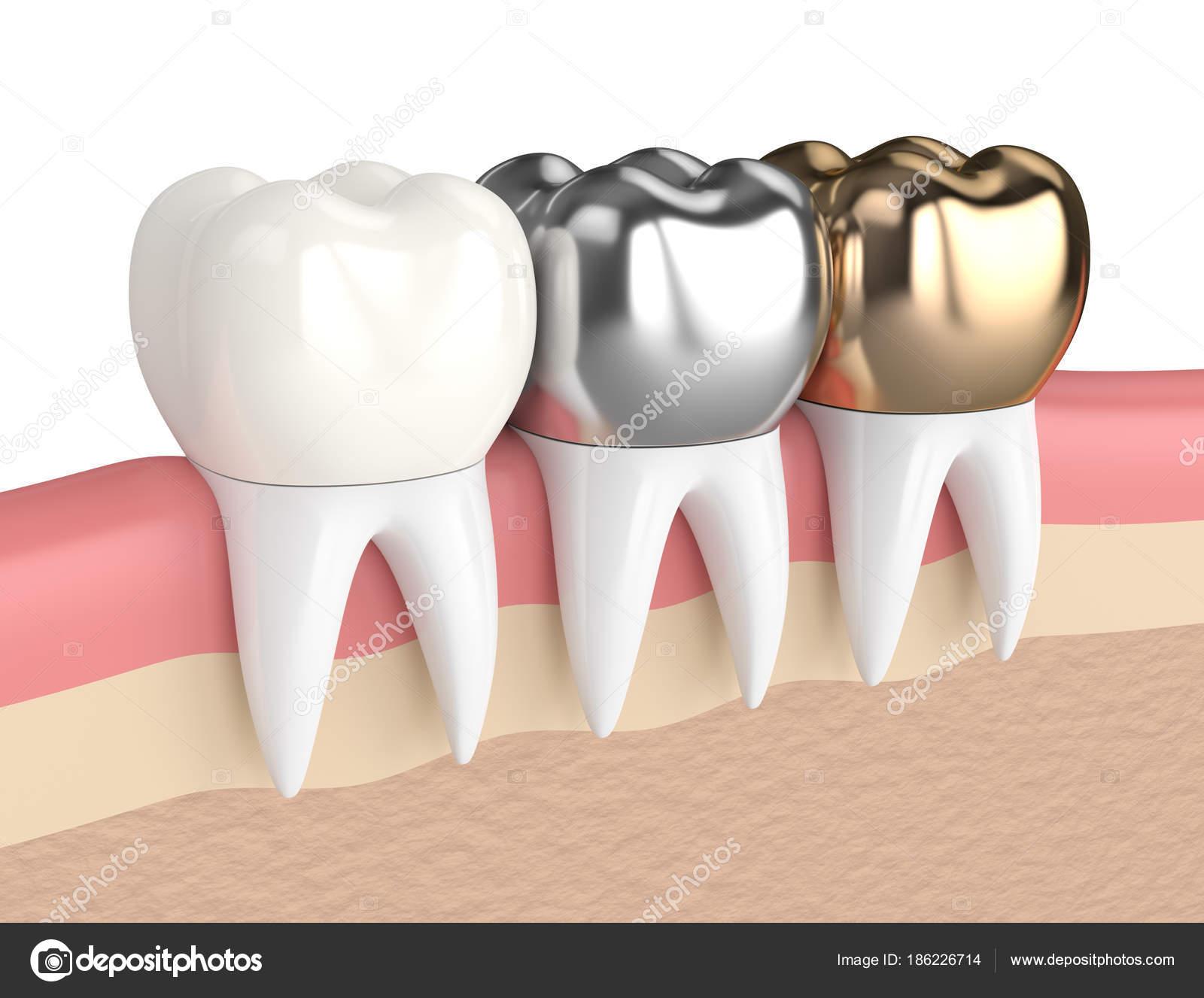 3D render de los dientes con diferentes tipos de corona dental ...