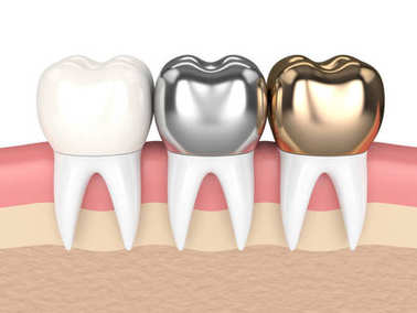 3d render of teeth with different types of dental crown