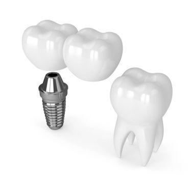3d render of implant with dental cantilever bridge