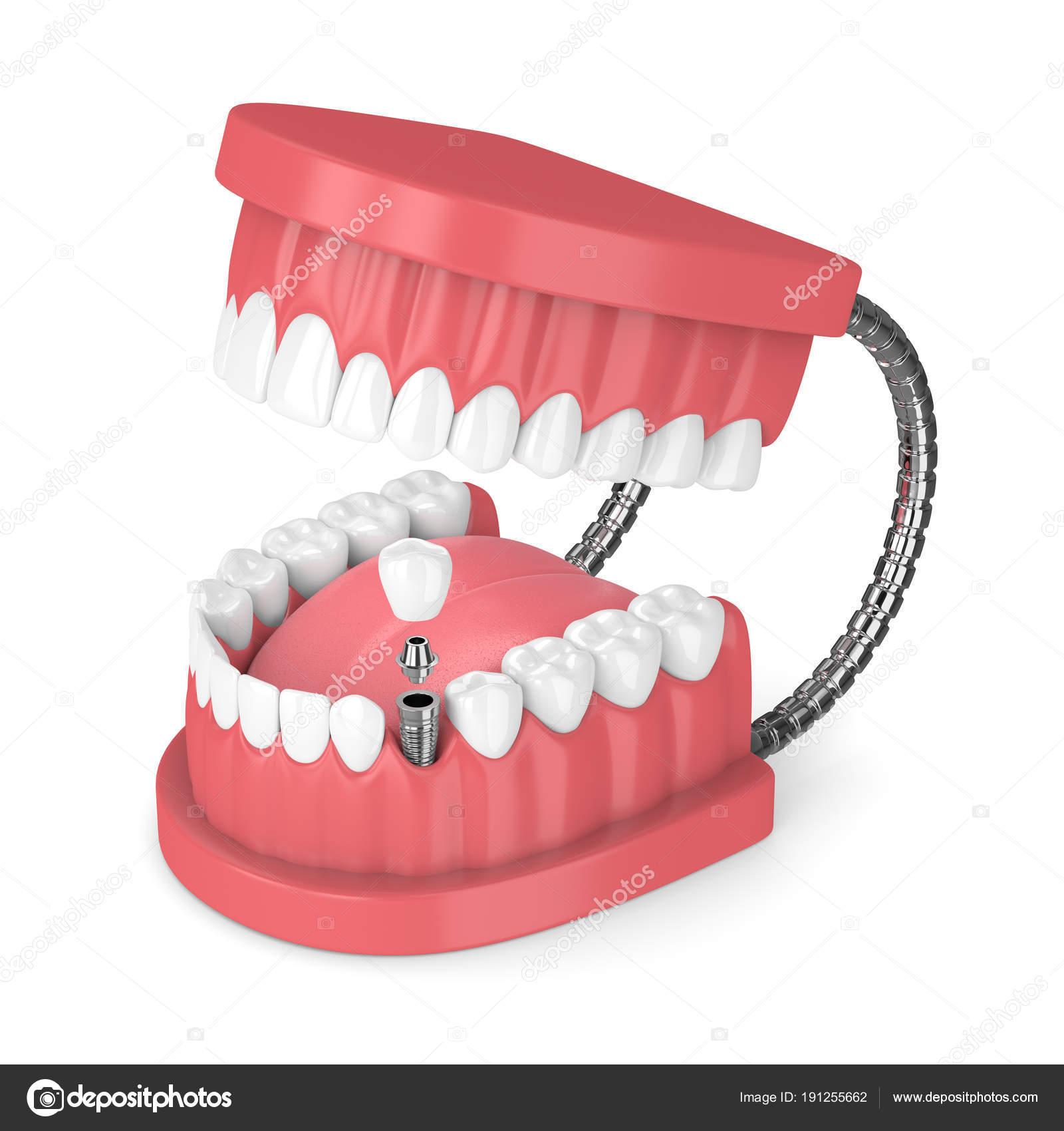 3D Rendering der Kiefer mit Zähnen und Prämolaren dental Implantat ...