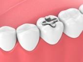 Fotografie 3D-Darstellung der Zähne mit Zahneinlage-Füllung