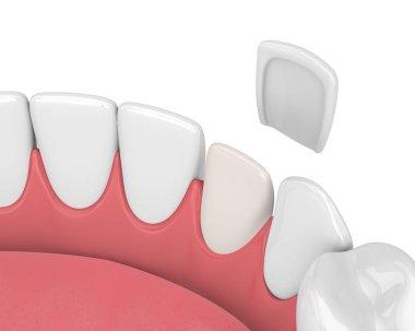 3d render of teeth with veneer over white stock vector