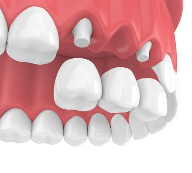 3d render of dental bridge with crowns in upper jaw isolated over white background