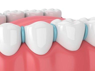 3d render of rubber separator between teeth