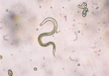 Toxocara canis second stage larvae hatch from eggs