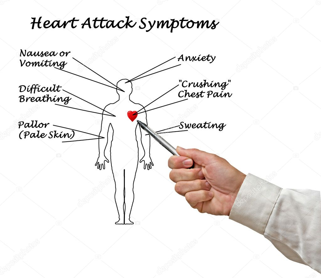 Diagram of heart attack symptoms stock photo vaeenma 128597742 diagram of heart attack symptoms photo by vaeenma ccuart Image collections