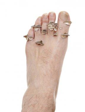 foot mycosis abstract