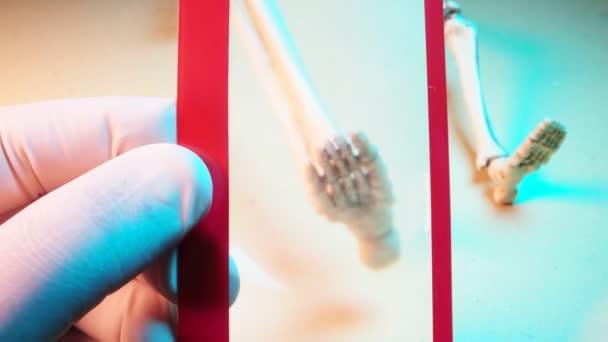 Mini Model kostry
