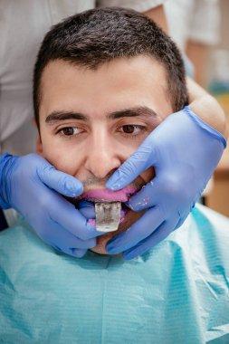 Dentist using dental impression for braces
