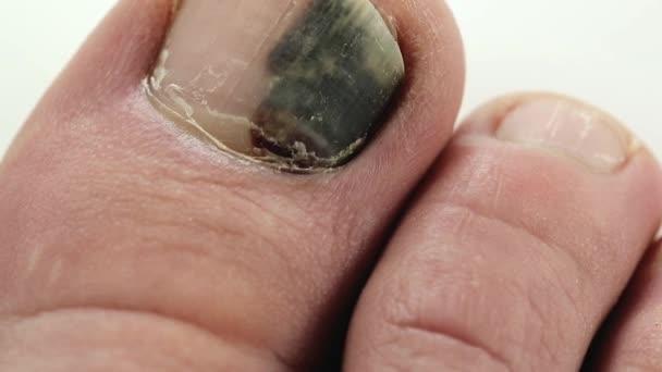 Nehty s plísňovou infekcí
