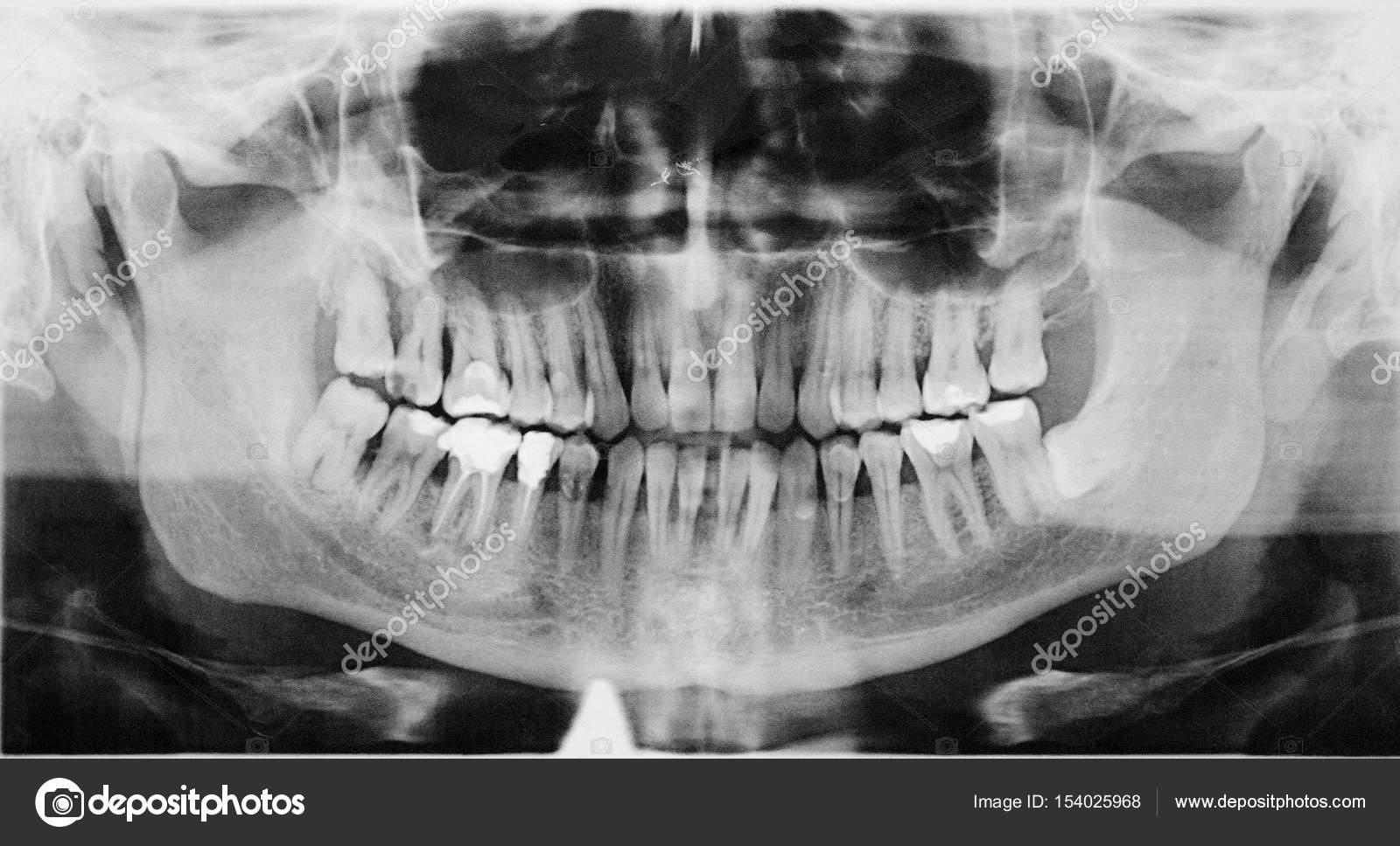 Panorama dental x-ray — Stockfoto © ivantcovlad #154025968