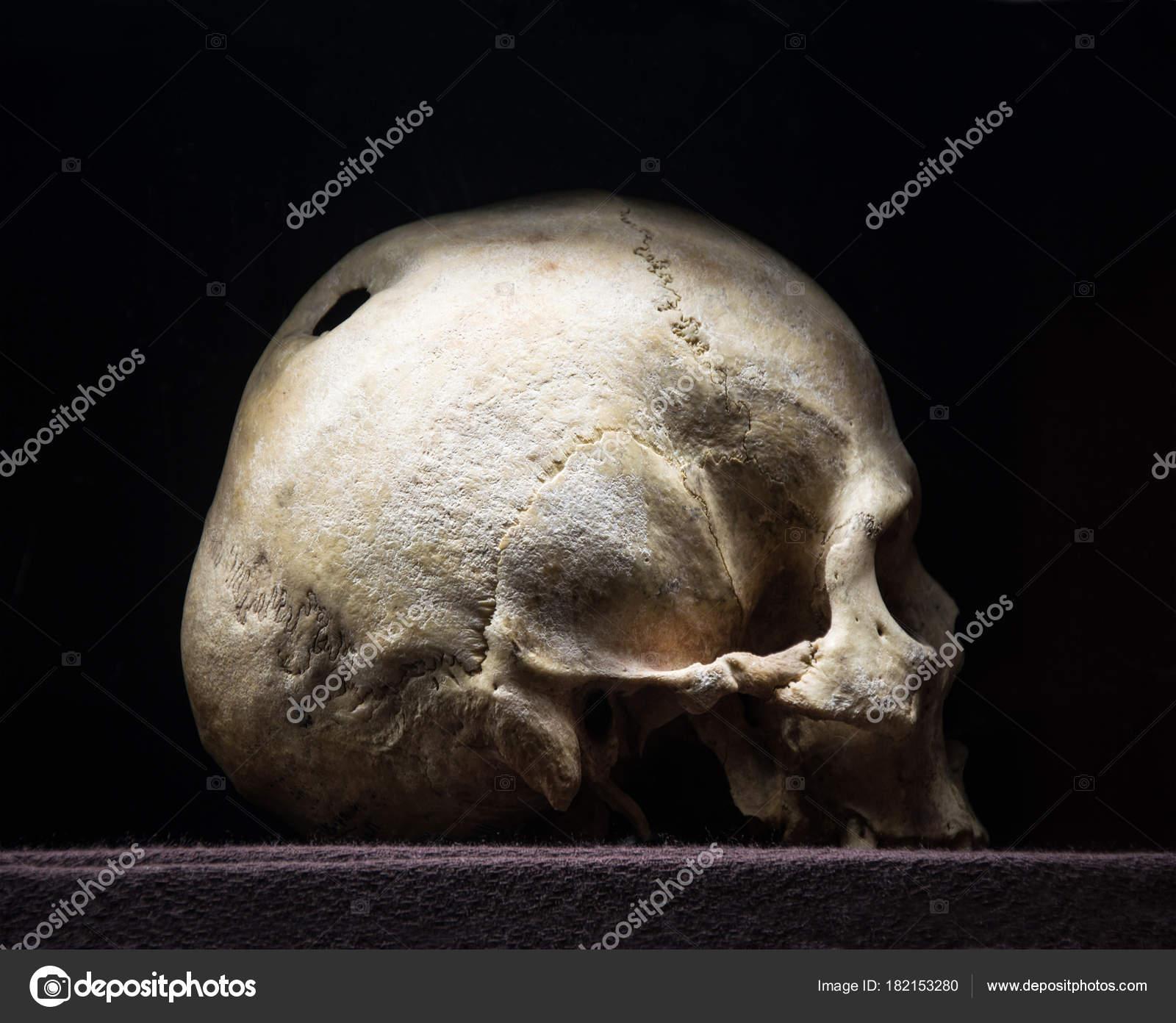 Agujero en el cráneo — Fotos de Stock © Marinka #182153280