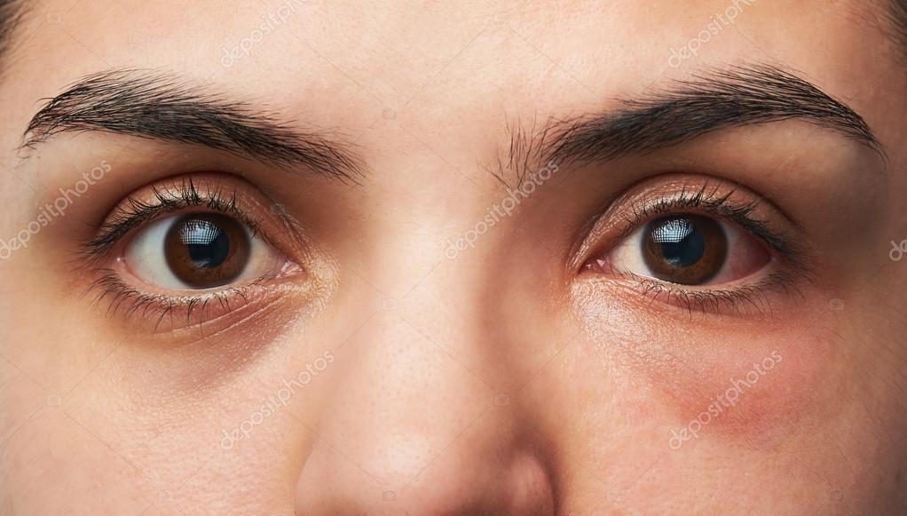 allergi i ögonen