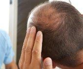 starší muž a vlasy ztráta problém