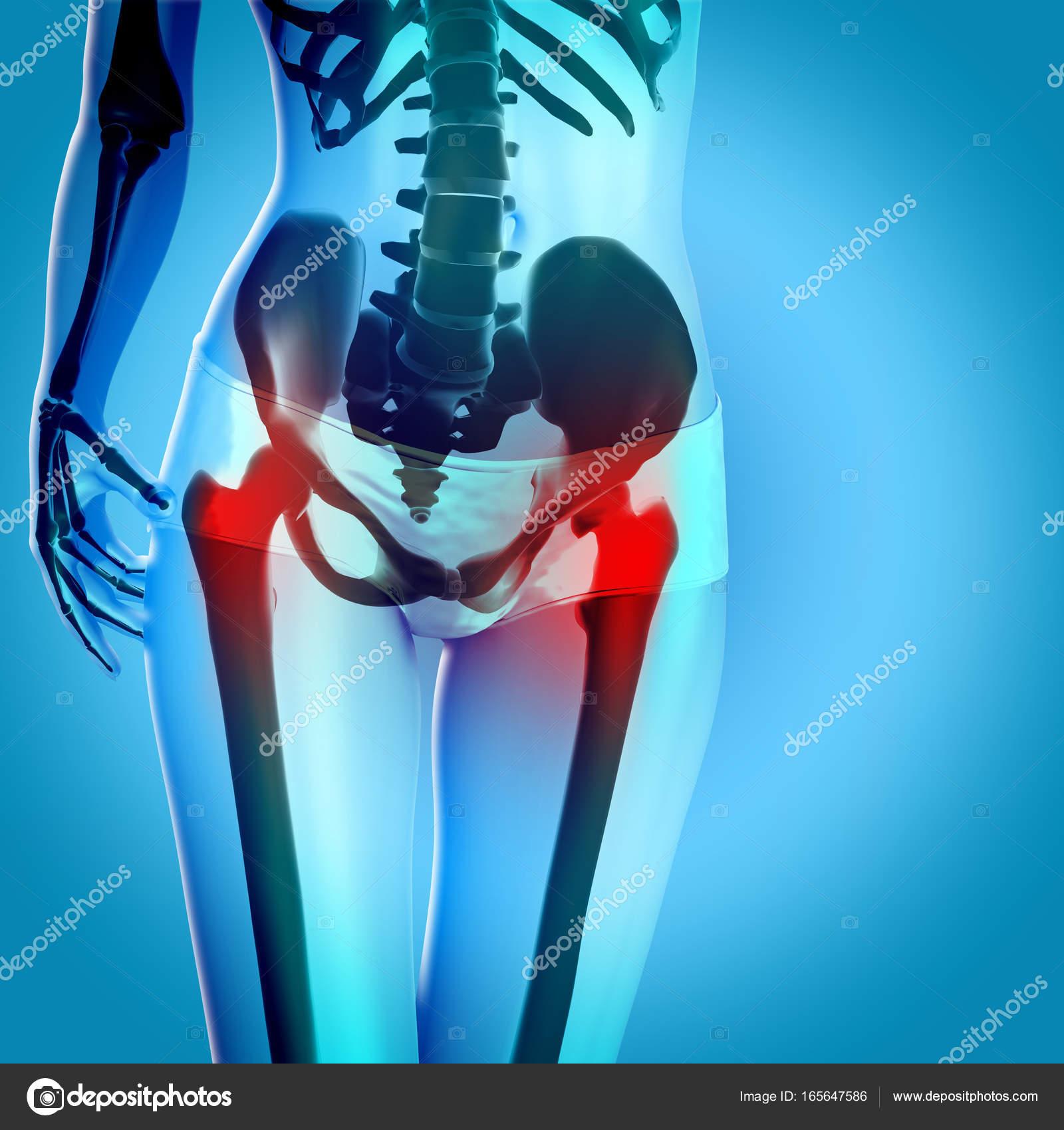 render 3D de una figura femenina con las caderas en el dolor — Foto ...