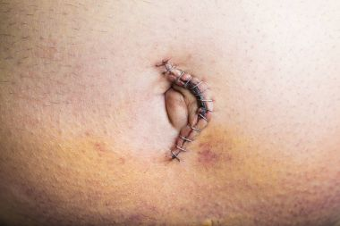Umbilical hernia repair surgery