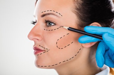 Surgeon Drawing Correction Lines On Young Woman Face