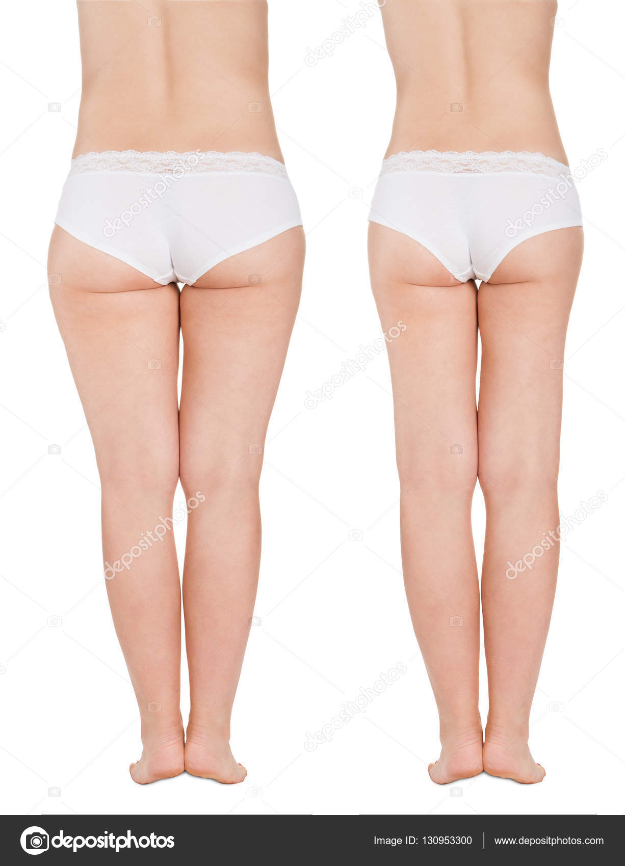 Before and after fat legs | Fat Thighs Before and After