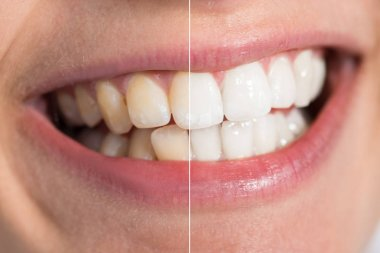 Human Teeth Before And After Whitening