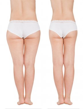 Fat Thighs Before and After Liposuction