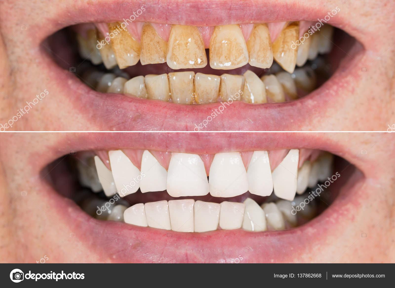 blanchiment des dents avant apres