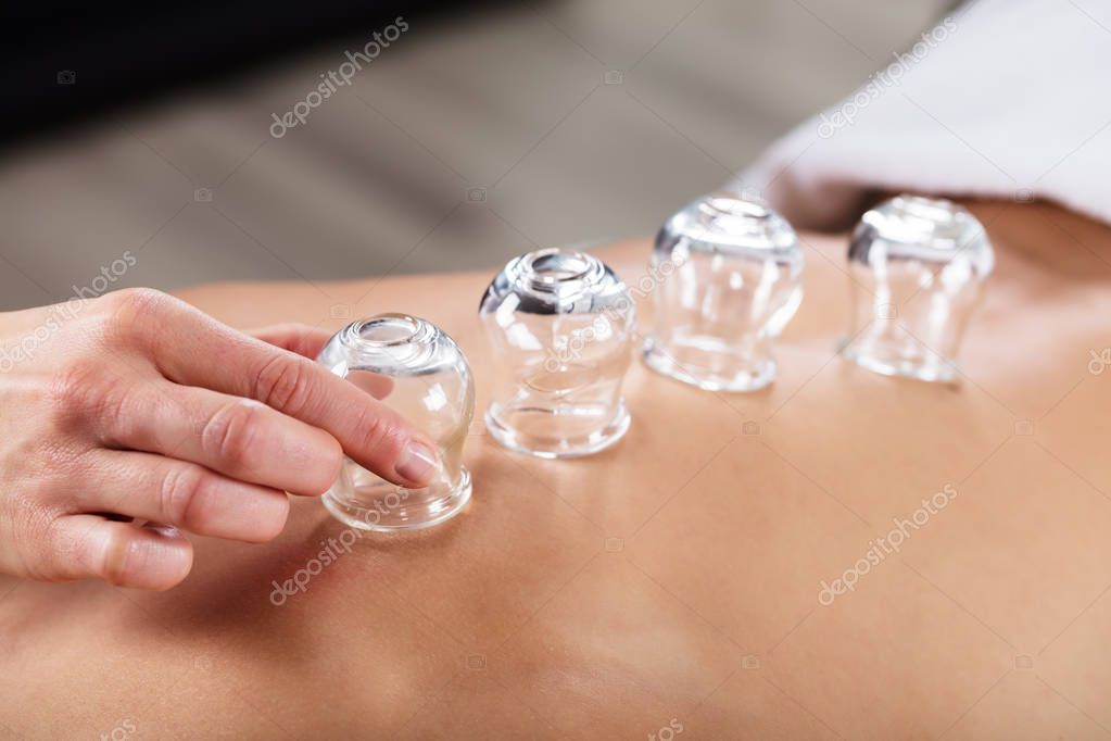 Therapist Placing Cups On Back
