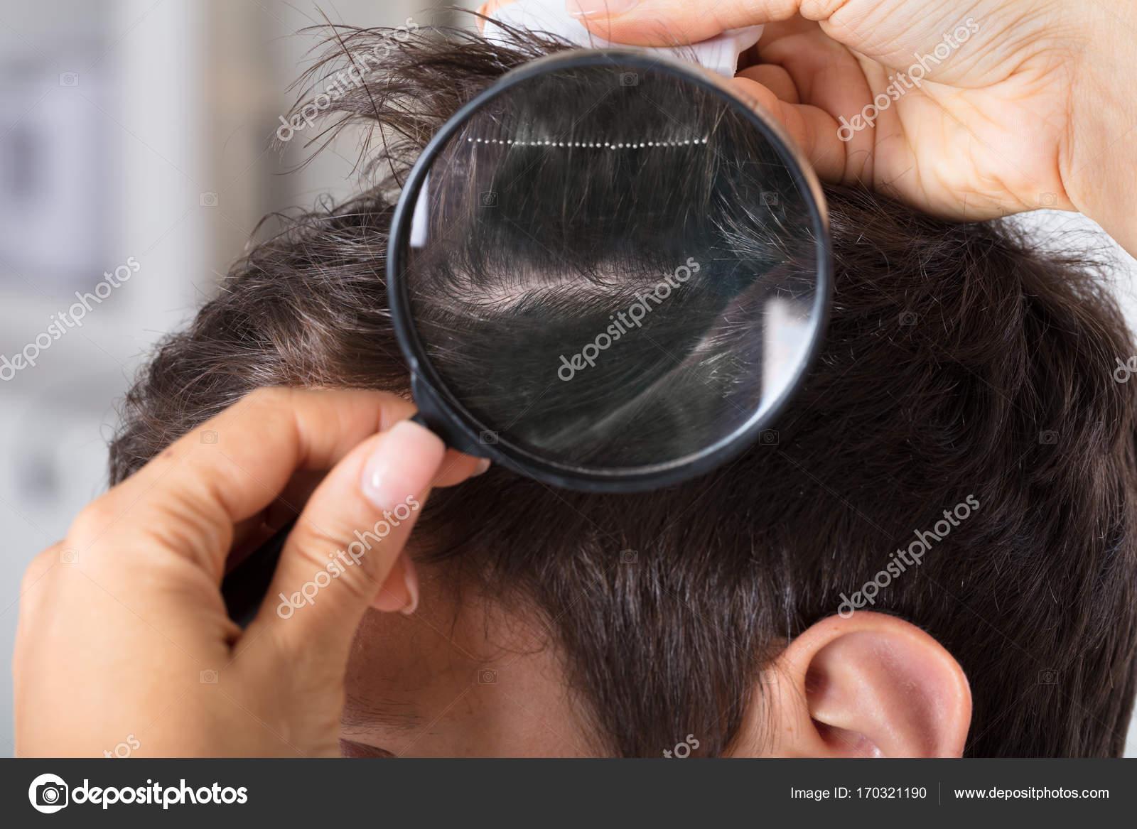 Dermatologo controllo paziente capelli — Foto Stock © AndreyPopov ... 46783281f5d1