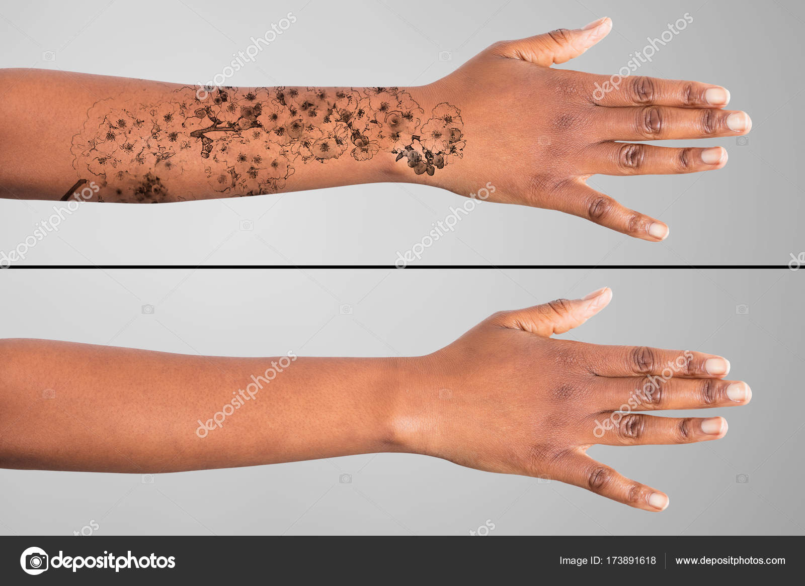 Tattoo Removal On Woman Hands — Stock Photo © AndreyPopov #173891618