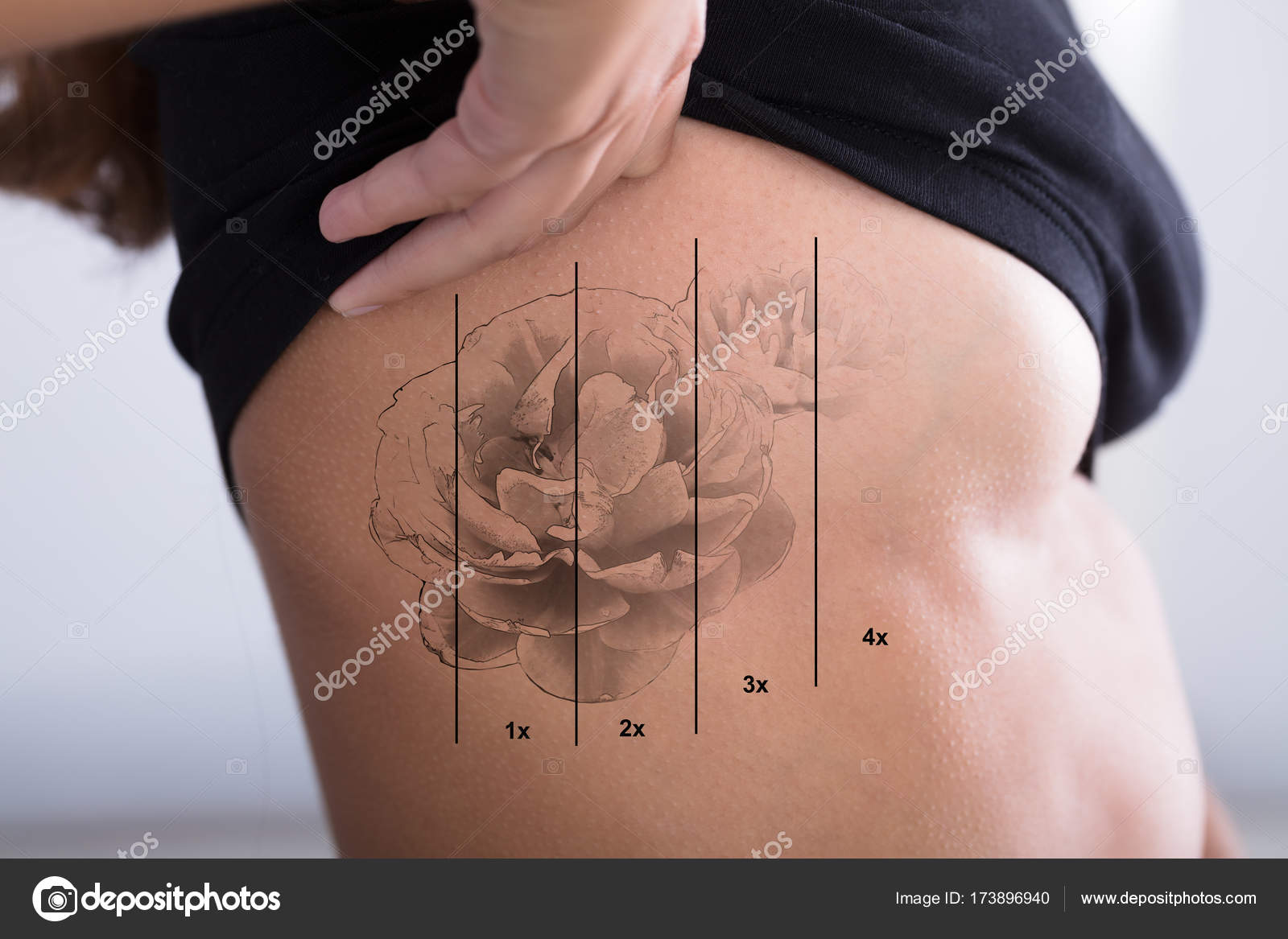 Eliminación De Tatuajes En La Mujer De La Costilla Fotos De Stock