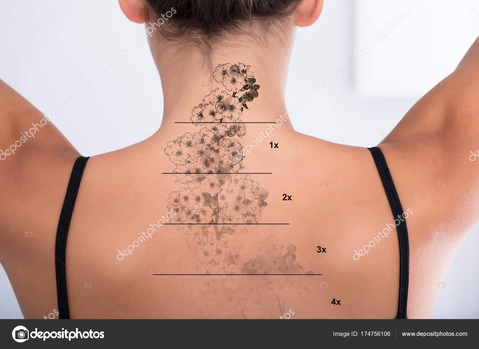 Usuwanie tatua u na kobieta ty zdj cie stockowe for Tattoo removal in louisiana